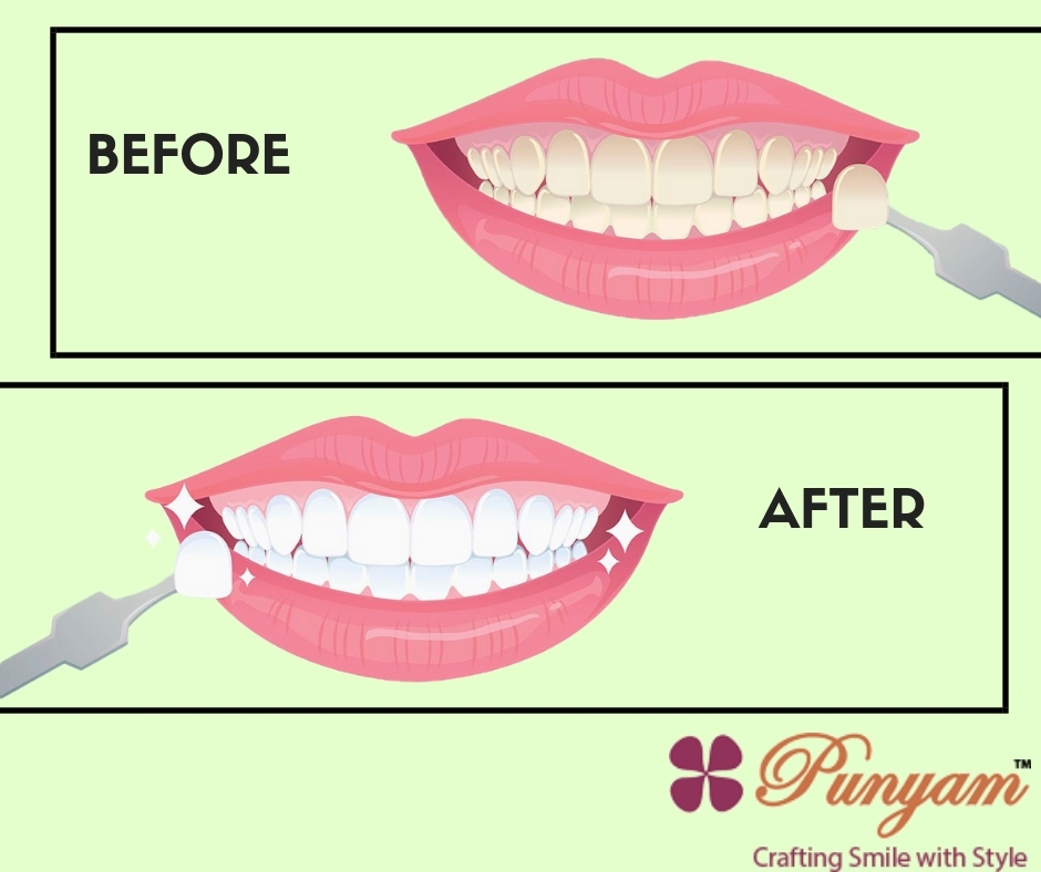 Teeth Whitening Treatment In Gurgaon – Punyam Dental | free Classified | Free Advertising | free classified ads