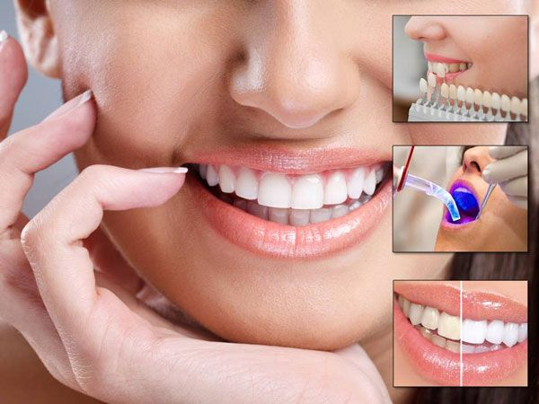 Get Professional Dentists Expert In Cosmetic Dentistry Plainfield IL | free Classified | Free Advertising | free classified ads