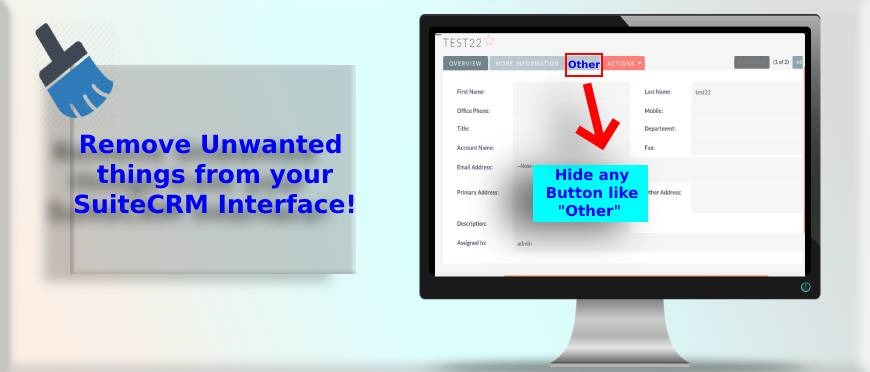 Global Hide Manager for SuiteCRM Interface -Hide unnecessary elements. | free Classified | Free Advertising | free classified ads
