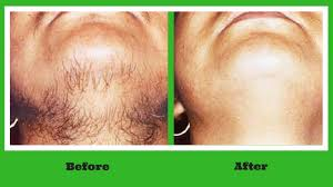 Permanent Hair Removal in Hyderabad | free Classified | Free Advertising | free classified ads
