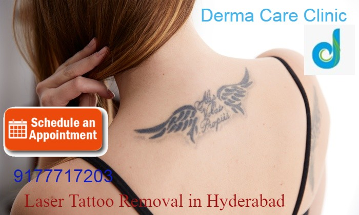 Top Laser Tattoo Removal in Himayat Nagar | Laser Tattoo Removal in Hyderabad | DermaCareClinic | free Classified | Free Advertising | free classified ads