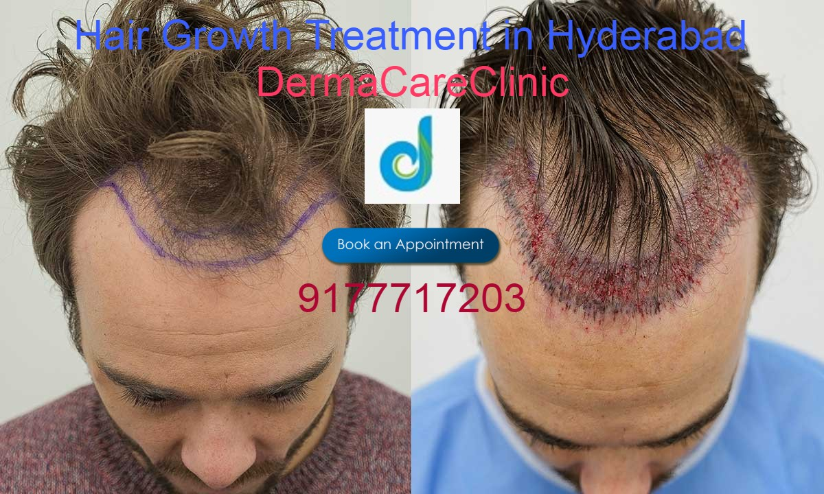 Hair Growth Treatment in Himayat Nagar | Hair Growth Treatment in Hyderabad | free Classified | Free Advertising | free classified ads