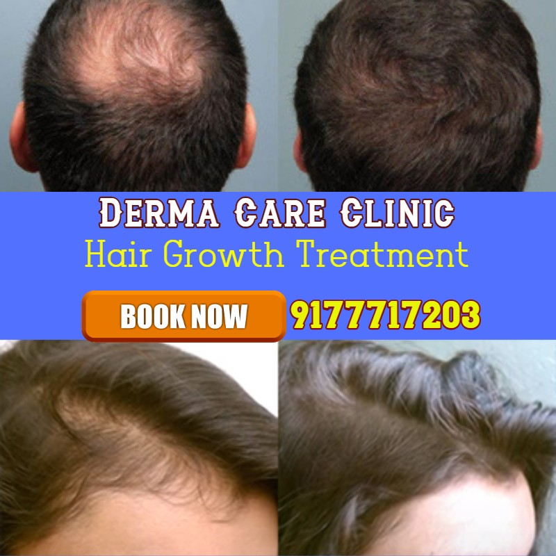 Hair Growth Treatment in Hyderabad | Hair Clinic in Himayat Nagar | Dermacare Clinic | free Classified | Free Advertising | free classified ads